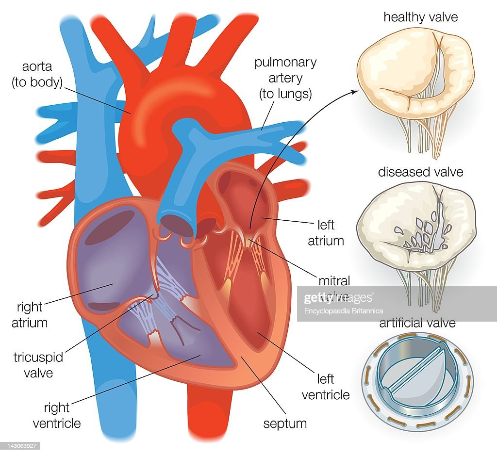 Diagram showing a healthy heart valve compared with a diseased heart diagram showing a healthy heart valve compared with a diseased heart valve and an artificial heart ccuart Choice Image