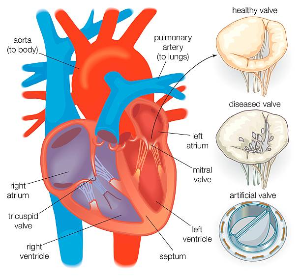 Diagram showing a healthy heart valve compared with a diseased diagram showing a healthy heart valve compared with a diseased heart valve and an artificial heart ccuart Images
