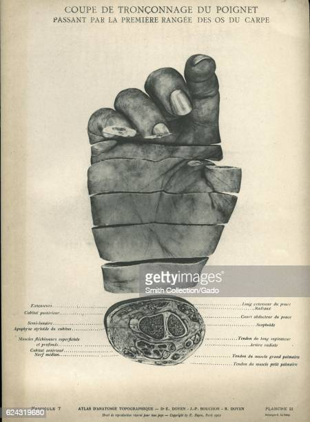 Diagrammatic illustration showing the right hand from Atlas d'anatomie topographique by EugeneLouis Doyen 1911 Courtesy National Library of Medicine