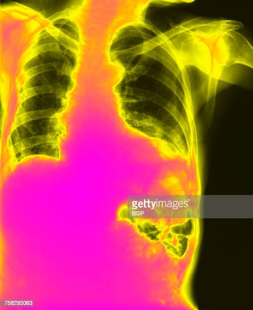 diaphragmatic hernia,x-ray - hernia stock pictures, royalty-free photos & images