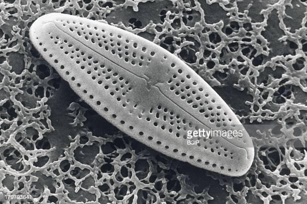 Diatom Sem Pinnularia Diatom Valve Displays Little Holes Termed Stria Striae Arranged In Rows Sem 4800X