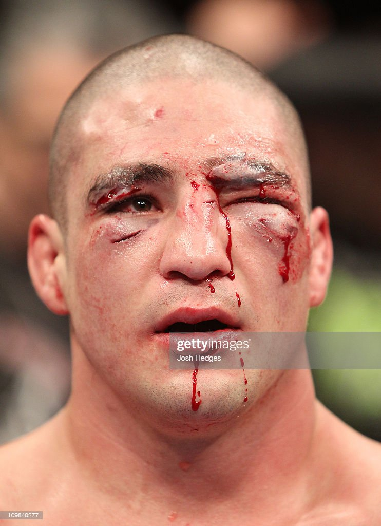UFC Live on Versus 3: Sanchez vs Kampmann : News Photo