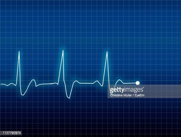digital composite image of pulse trace on grid - pulse trace stock pictures, royalty-free photos & images