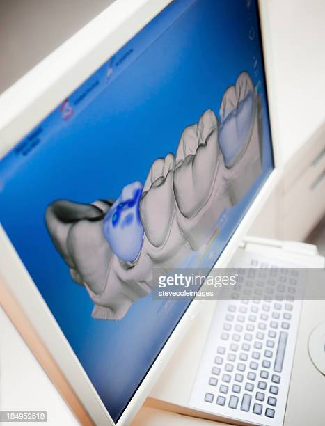 Digital X-ray Of Human Teeth