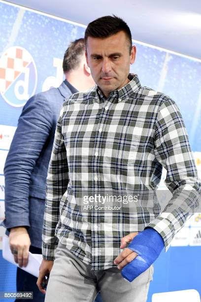 Dinamo Zagreb's head coach Mario Cvitanovic arrives to a press conference in Zagreb on September 21 2017 after being beaten by two masked assailants...