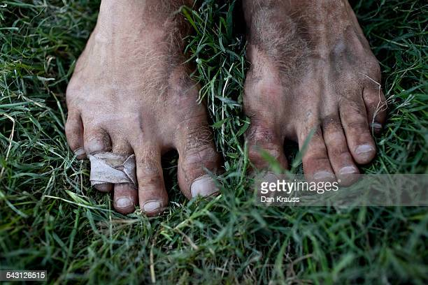 dirty feet with bandaged broken toes. - dirty feet stock pictures, royalty-free photos & images