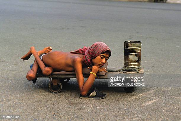 A disabled and malformed victim of foliant Agent Orange begs on the streets of Saigon to make a living