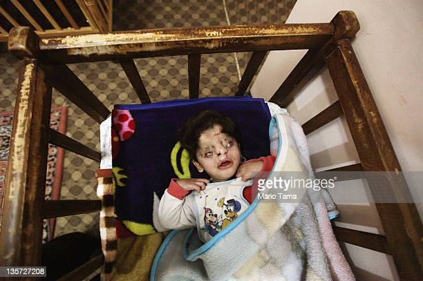 Disabled orphan Farah rests in the orphanage where she lives on December 13 2011 in Baghdad Iraq Farah was abandoned at birth by her parents at the...
