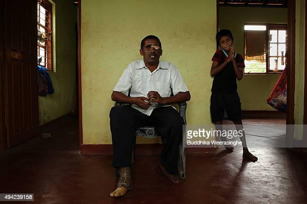A disabled Sri Lankan ethnic Tamil war survivor man named Ramaia Pushparathna 33 years old sits on October 25 2015 in Kilinochchi Sri Lanka...