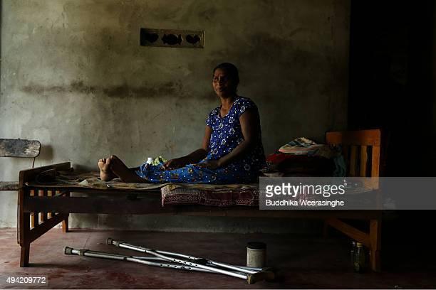 A disabled Sri Lankan ethnic Tamil war survivor woman named Jakap Thangamma 55 years old sits on her bed on October 25 2015 in Kilinochchi Sri Lanka...