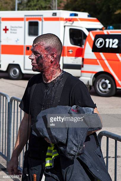 disaster management exercise, mass-casualty incident - burn injury stock photos and pictures