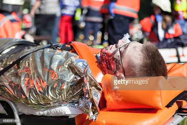 disaster management exercise, mass-casualty incident - burns victims stock pictures, royalty-free photos & images