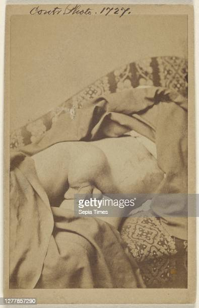 Diseased undescended Testes with Hydwelle; American; 1862 - 1872; Albumen silver print.