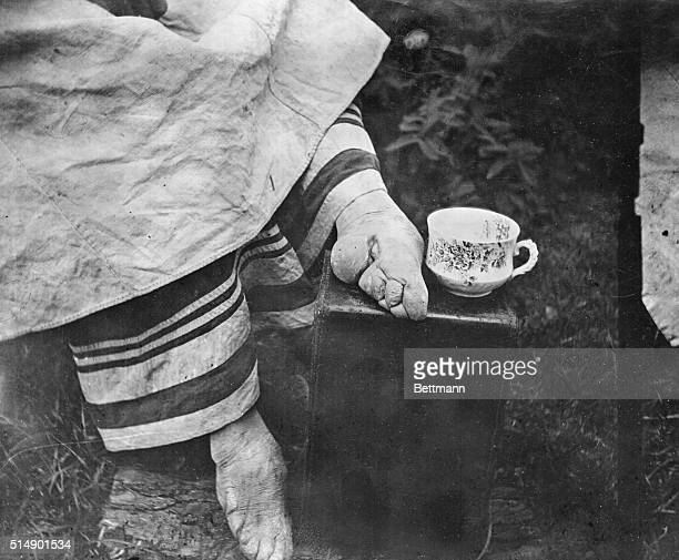 Disfigured feet of a Chinese woman Cruel custom of bandaging feet of women of the aristocracy from infancy was still practiced around 1900
