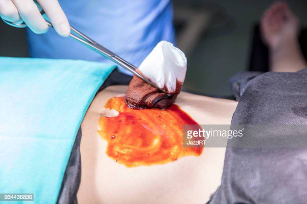 disinfecting skin using antiseptic on swab and forceps - image technique stock pictures, royalty-free photos & images