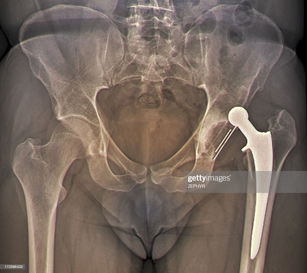 Dislocated hip replacement, X-ray : Stock Photo