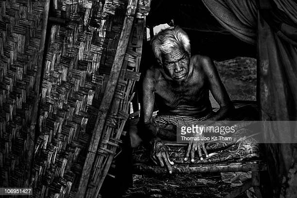A displaced elderly sick man in the slum of Andong Phnom Penh