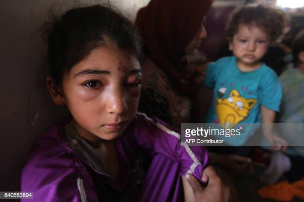 TOPSHOT A displaced Iraqi girl from Tal Afar sits at a house in AlAyadieh village on August 29 where she got injured as her family was seeking...