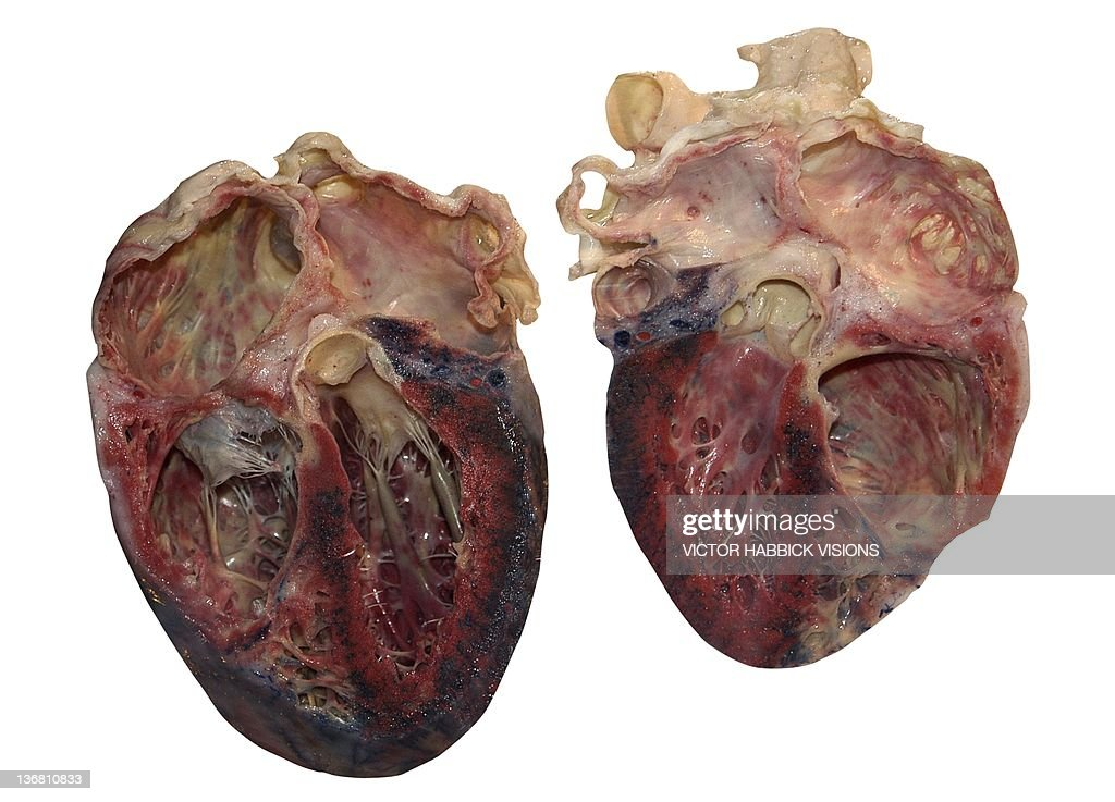 Dissected Human Heart Stock Photo