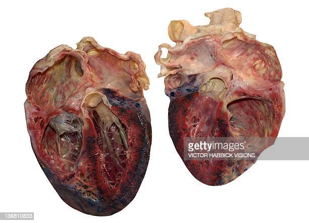 dissected human heart - human heart stock pictures, royalty-free photos & images