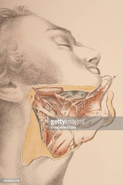 Dissection of the submaxillary region of the chin and neck 1882 From 'Illustrations of Dissections in a Series of Original Colored Plates...