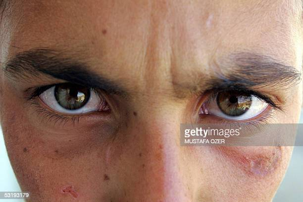 The face of a youg woman, suffering from Oriental Boil, is seen 01 July 2005 in the southeastern Turkish city of Diyarbakir. Leishmaniasis is a...
