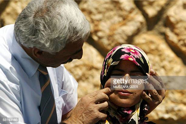 The mayor of the southeaastern Turkish province of Kaygisiz Mustafa Kacmaz looks 01 July 2005 at the face of a young woman suffering from Oriental...