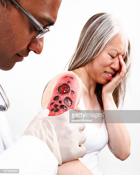 docter examining burn on patient - stage make up stock photos and pictures