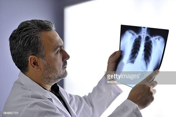 medico e radiografia - torace umano foto e immagini stock