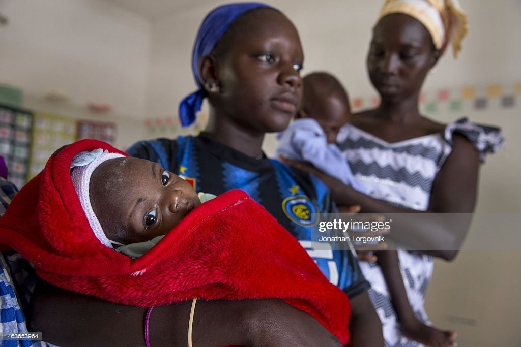 A doctor attends to malnourished children at the Kaolack central hospital. The mothers that come with their malnourished children also receive counseling on good nutrition for their children. August 20, 2014 in Kaolack, Senegal.