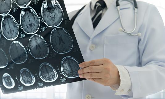 doctor brain mri 862563174