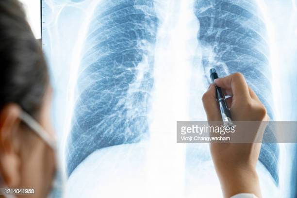 doctor checking coronavirus patient chest x-ray film at ward hospital. - tomography stock pictures, royalty-free photos & images