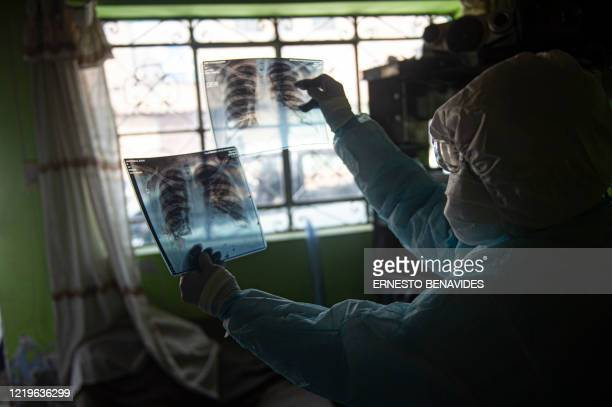 Doctor checks a lung X-ray plate while visiting a patient with COVID-19 in Comas, northern outskirts of Lima, on June 11, 2020. - The Rapid Response...