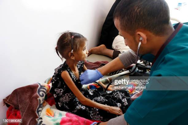 Doctor checks a malnourished girl as she receives treatment at the al-Sabeen hospital on February 13 in Sana'a. The UN agencies said on Friday that...