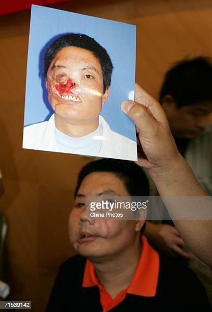 Doctor displays the picture of Li Guoxing, China's first face transplant patient, taken before his transplant surgery at a press conference on July...