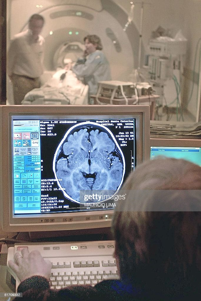 A doctor examines the results of a patient's MRI i : News Photo