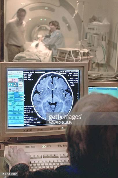 A doctor examines the results of a patient's MRI in Sao Pauol Brazil 22 November 2001 Un especialista en resonancia magnetica nuclear del Hospital...