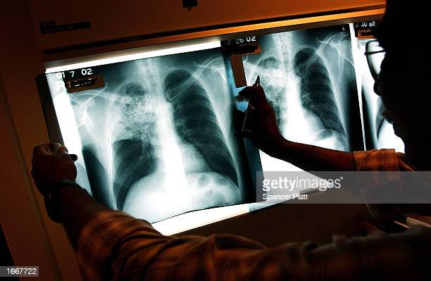 A doctor examines the xrays of a tuberculosis patient at a TB clinic Novmeber 27 2002 in Brooklyn New York Healthcare workers around the country...