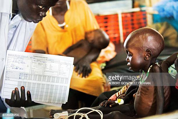 A doctor examines Wek Wol Wek who suffers acute malnutrition at the clinic run by Doctors without Borders in Aweil Northern Bahr al Ghazal South...