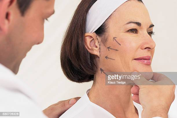 Doctor examining a woman's face marked for a facelift