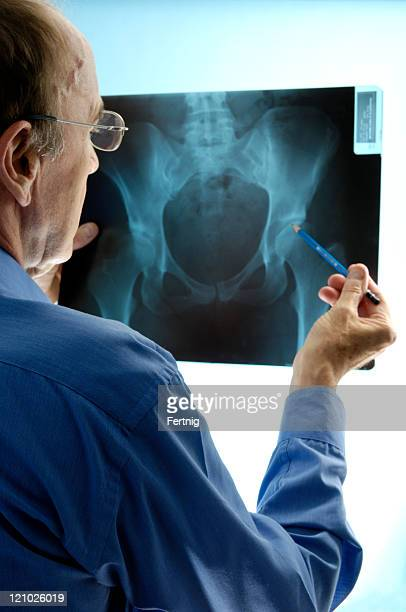 Doctor examining an x-ray of pelvic region