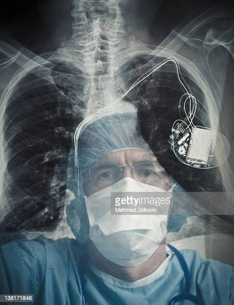 doctor examining chest x-ray and pacemaker - pacemaker stock pictures, royalty-free photos & images