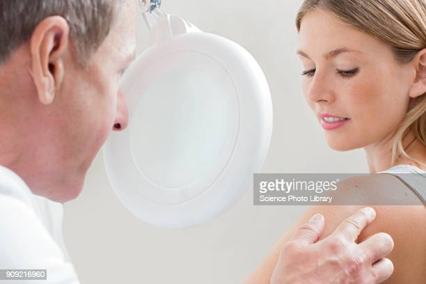 doctor examining mole on young womans shoulder - mole stock photos and pictures