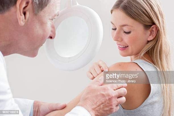 doctor examining mole on young womans shoulder - looking over shoulder ストックフォトと画像