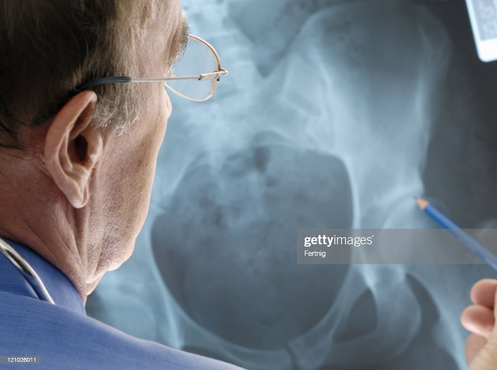 Doctor examining osteoporosis on an x-ray. : Stock Photo