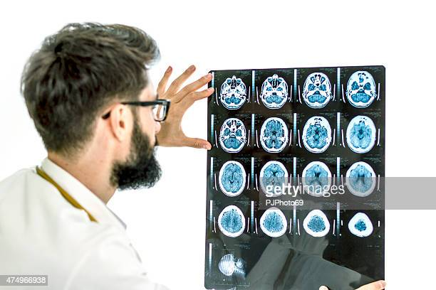 doctor examining the x-ray of brain - male genital organs stock pictures, royalty-free photos & images