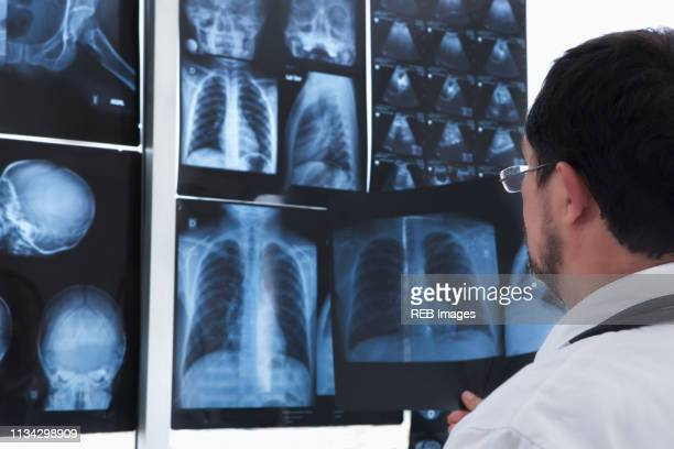 doctor examining xray images on wall - radiographie photos et images de collection