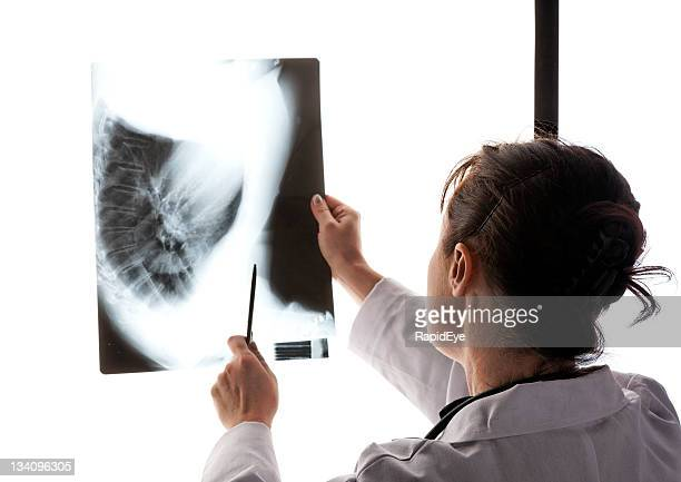 doctor examining x-ray - lightbox stock photos and pictures