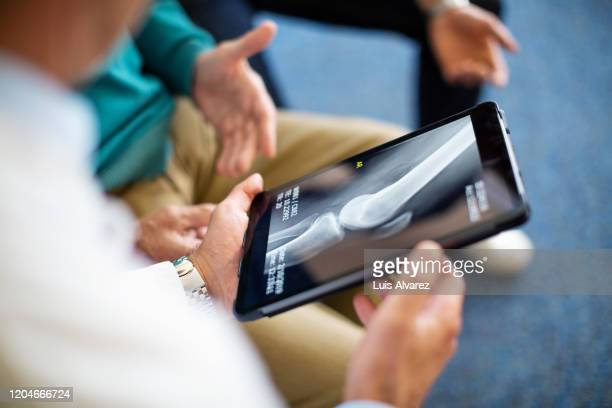 doctor explaining x-ray report to patient - injured stock pictures, royalty-free photos & images