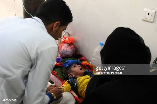 A doctor gives a malnourished child medical treatment amid a spread of malnutrition and risk of famine at a hospital on November 15 2017 in Sana'a...